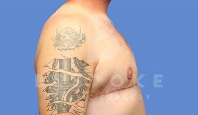 Gynecomastia Gallery - Patient 4622819 - Image 6