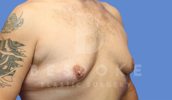 Gynecomastia Gallery - Patient 4622819 - Image 3