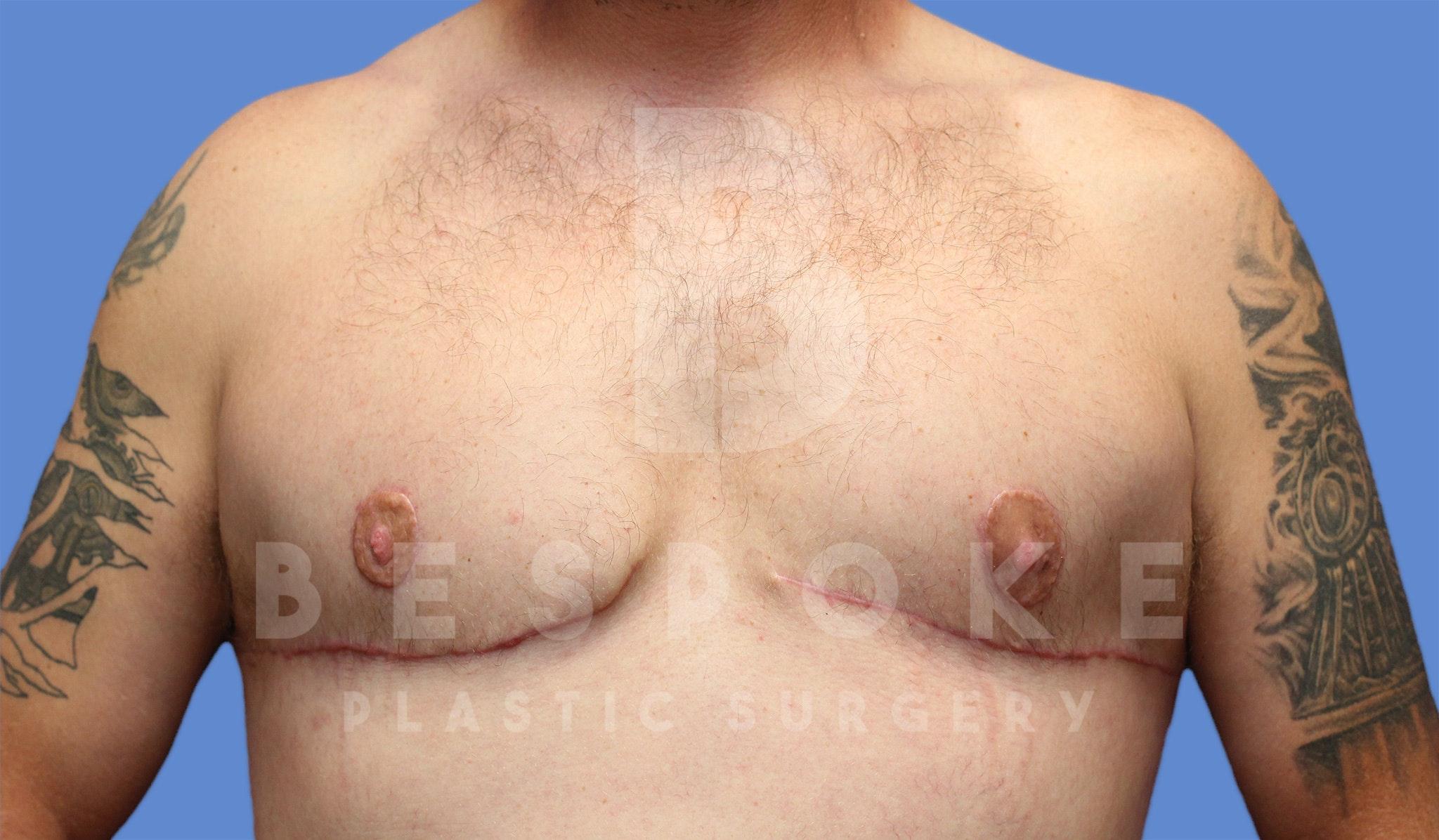 Gynecomastia Gallery - Patient 4622819 - Image 2