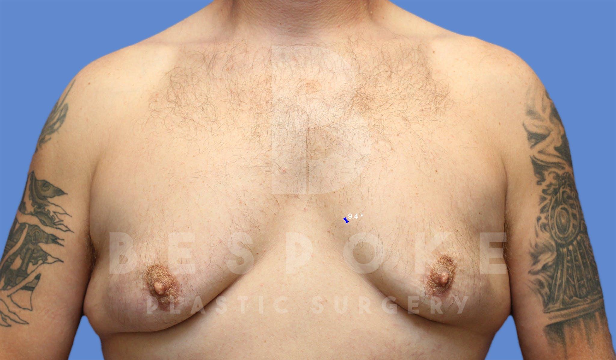 Gynecomastia Gallery - Patient 4622819 - Image 1