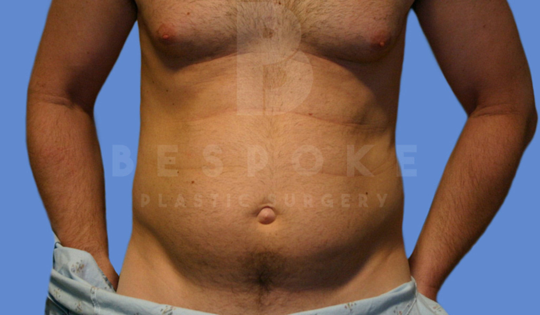 Liposuction Gallery - Patient 4622785 - Image 1