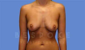 Charlotte NC Before & After Breast Augmentation