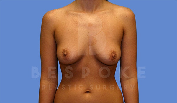 Breast Augmentation Gallery - Patient 4657401 - Image 1