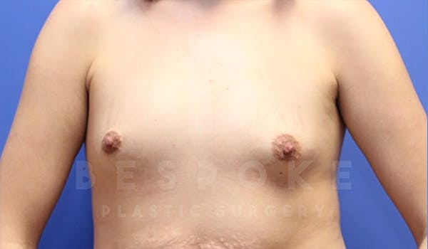 Breast Augmentation Gallery - Patient 4657402 - Image 1
