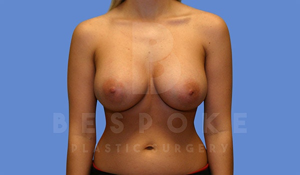 Breast Augmentation Gallery - Patient 4657401 - Image 2