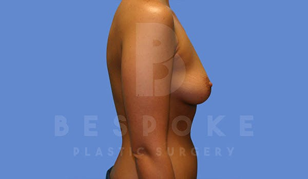 Breast Augmentation Gallery - Patient 4657401 - Image 3