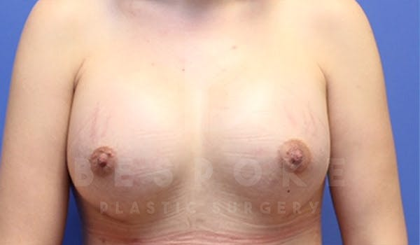 Breast Augmentation Gallery - Patient 4657402 - Image 2