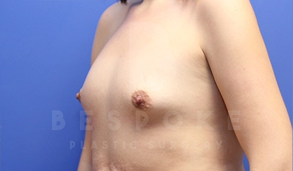 Breast Augmentation Gallery - Patient 4657402 - Image 3