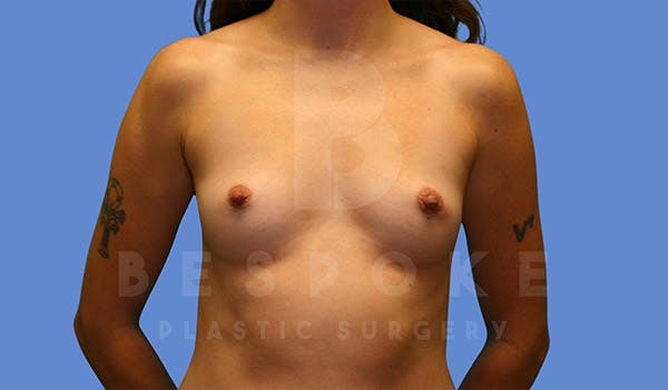 Breast Augmentation Gallery - Patient 4657403 - Image 1