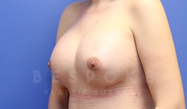 Breast Augmentation Gallery - Patient 4657402 - Image 4
