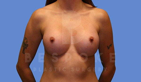 Breast Augmentation Gallery - Patient 4657403 - Image 2