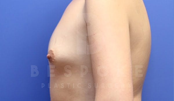 Breast Augmentation Gallery - Patient 4657402 - Image 5