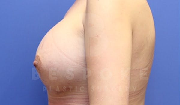 Breast Augmentation Gallery - Patient 4657402 - Image 6