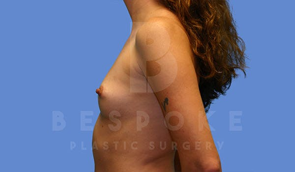 Breast Augmentation Gallery - Patient 4657403 - Image 5