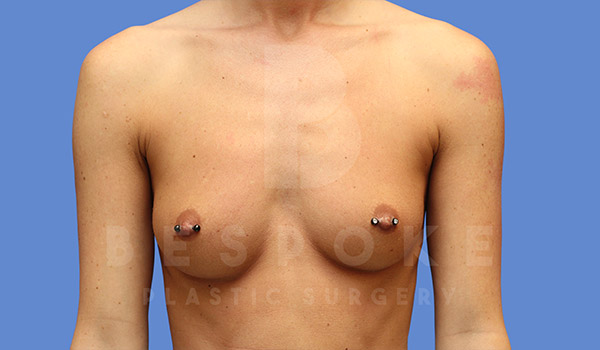 Breast Augmentation Gallery - Patient 4657404 - Image 7