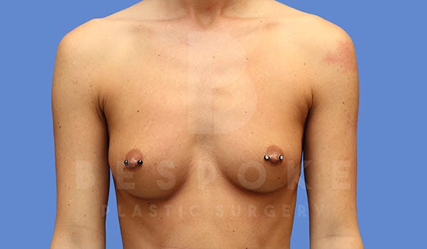 Breast Augmentation Gallery - Patient 4657404 - Image 1