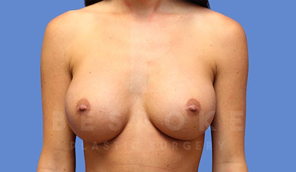 Breast Augmentation Gallery - Patient 4657404 - Image 2