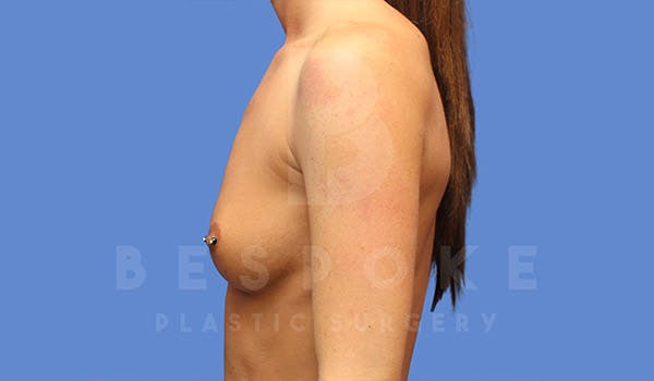 Breast Augmentation Gallery - Patient 4657404 - Image 3
