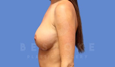 Breast Augmentation Gallery - Patient 4657404 - Image 4