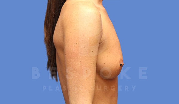 Breast Augmentation Gallery - Patient 4657404 - Image 5