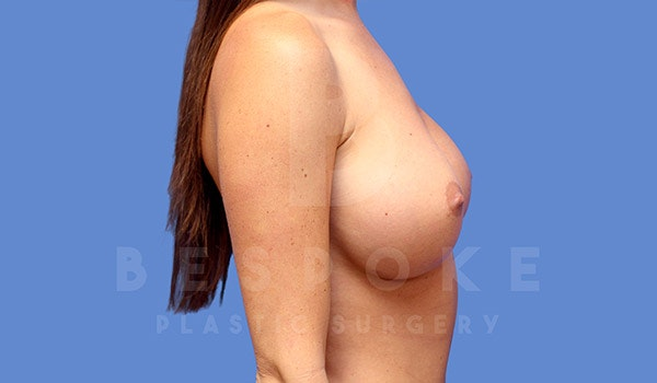 Breast Augmentation Gallery - Patient 4657404 - Image 6