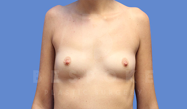 Breast Augmentation Gallery - Patient 4657405 - Image 8