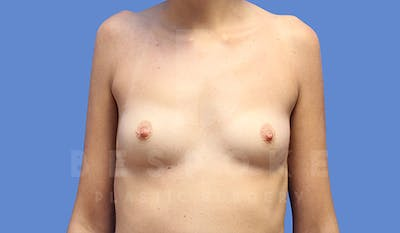 Breast Augmentation Gallery - Patient 4657405 - Image 1