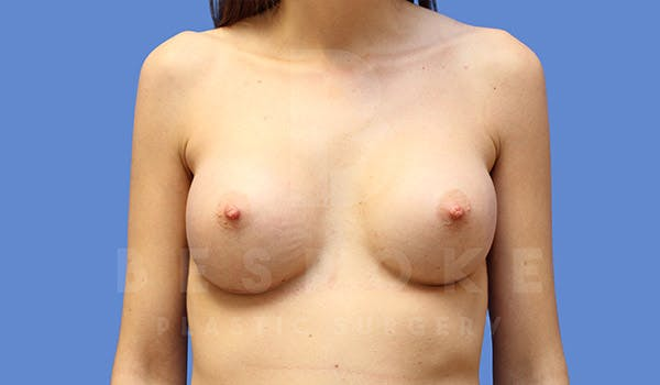 Breast Augmentation Gallery - Patient 4657405 - Image 2