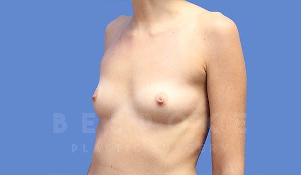 Breast Augmentation Gallery - Patient 4657405 - Image 3