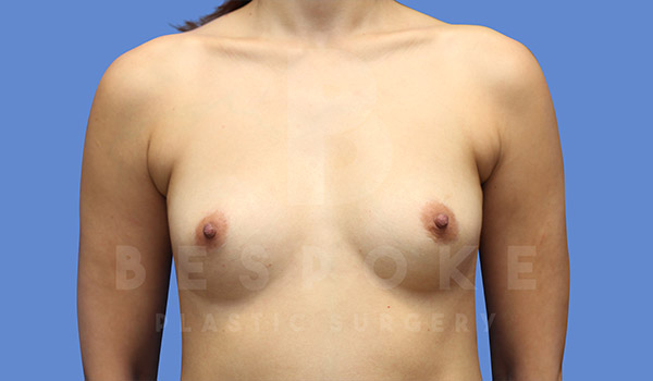 Breast Augmentation Gallery - Patient 4657406 - Image 9