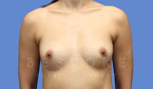 Charlotte NC Breast Augmentation Results