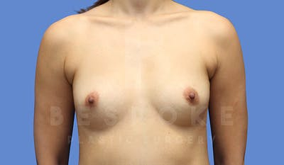 Breast Augmentation Gallery - Patient 4657406 - Image 1