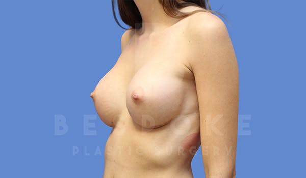 Breast Augmentation Gallery - Patient 4657405 - Image 4