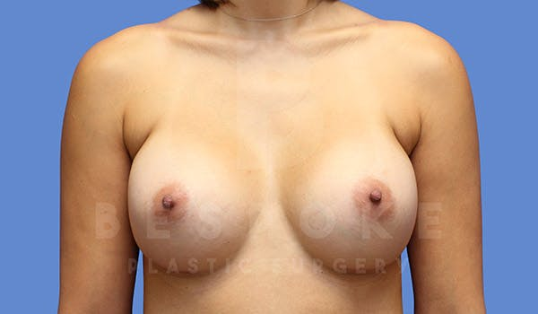 Breast Augmentation Gallery - Patient 4657406 - Image 2