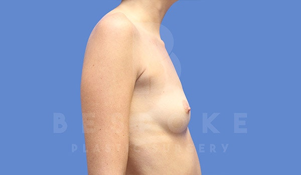 Breast Augmentation Gallery - Patient 4657405 - Image 5