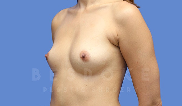 Breast Augmentation Gallery - Patient 4657406 - Image 3