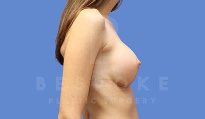 Breast Augmentation Gallery - Patient 4657405 - Image 6