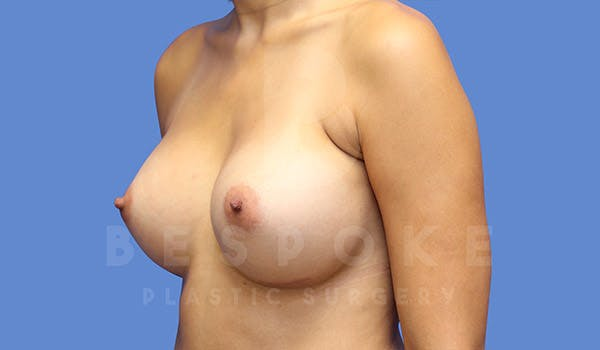 Breast Augmentation Gallery - Patient 4657406 - Image 4