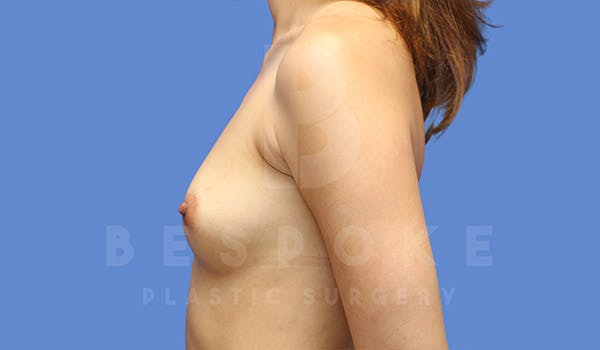 Breast Augmentation Gallery - Patient 4657406 - Image 5