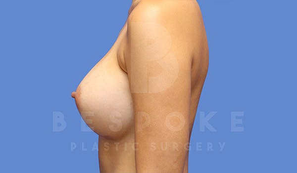 Breast Augmentation Gallery - Patient 4657406 - Image 6