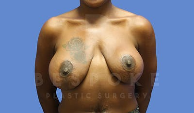 Breast Revision Surgery Gallery - Patient 4657431 - Image 1