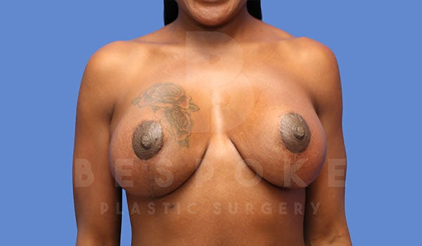 Breast Revision Surgery Gallery - Patient 4657431 - Image 2