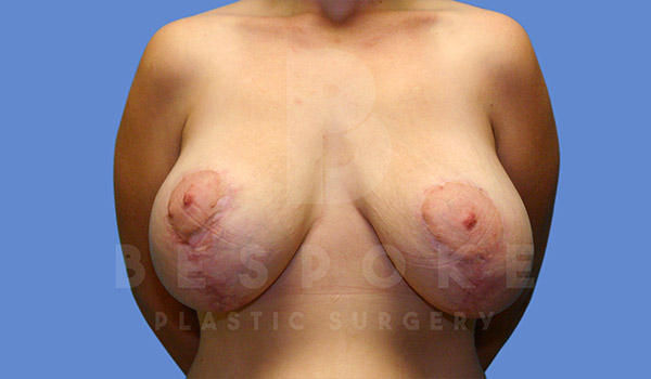 Breast Revision Surgery Gallery - Patient 4657432 - Image 2