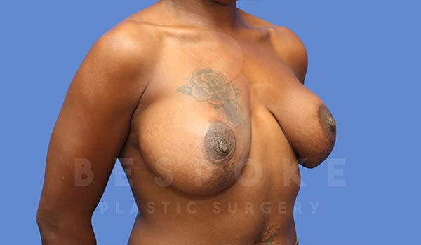 Breast Revision Surgery Gallery - Patient 4657431 - Image 3