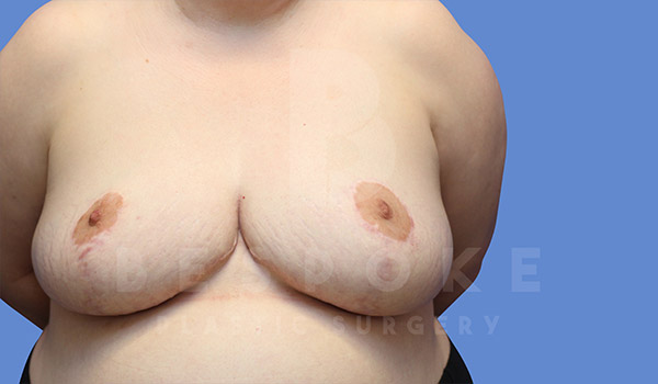 Breast Revision Surgery Gallery - Patient 4657433 - Image 3