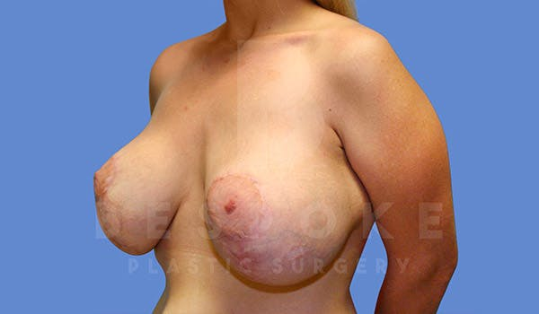Breast Revision Surgery Gallery - Patient 4657432 - Image 3