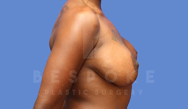 Breast Revision Surgery Gallery - Patient 4657431 - Image 5
