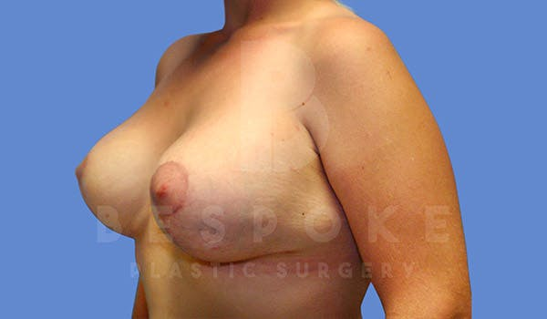 Breast Revision Surgery Gallery - Patient 4657432 - Image 4