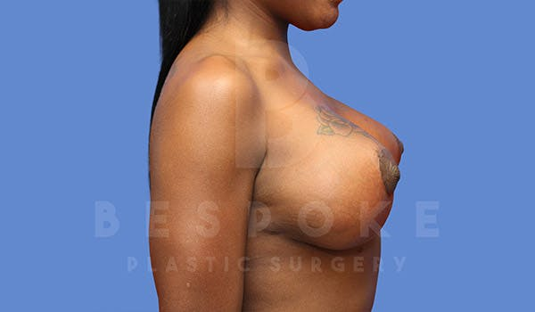 Breast Revision Surgery Gallery - Patient 4657431 - Image 6