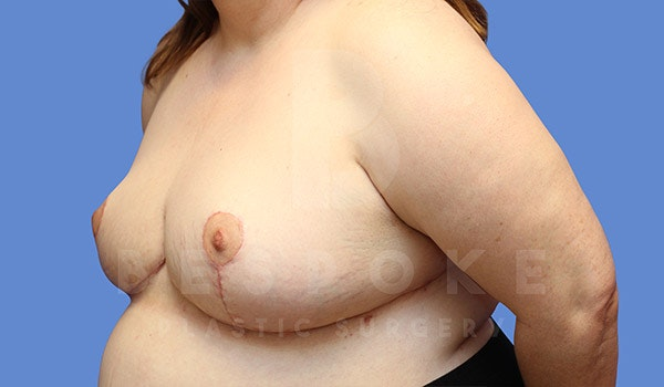 Breast Revision Surgery Gallery - Patient 4657433 - Image 4